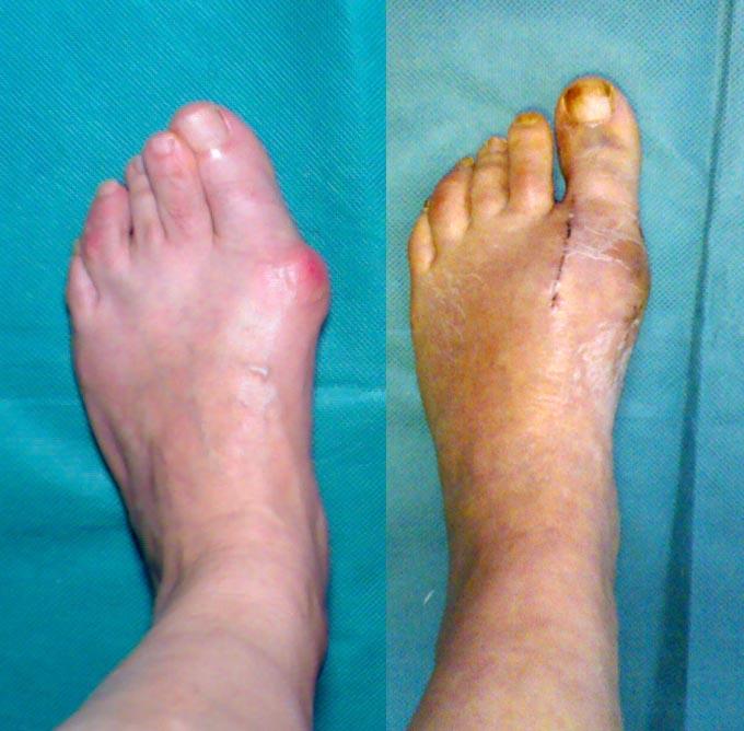 Косточки на больших пальцах ног лечение народными средствами отзывы