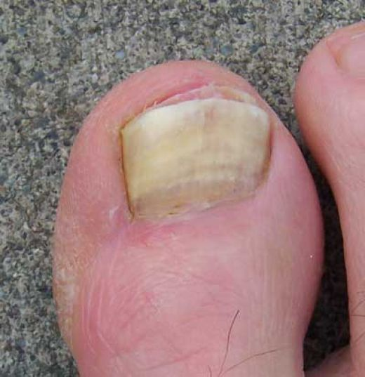 Удалить ноготь с грибком народными средствами