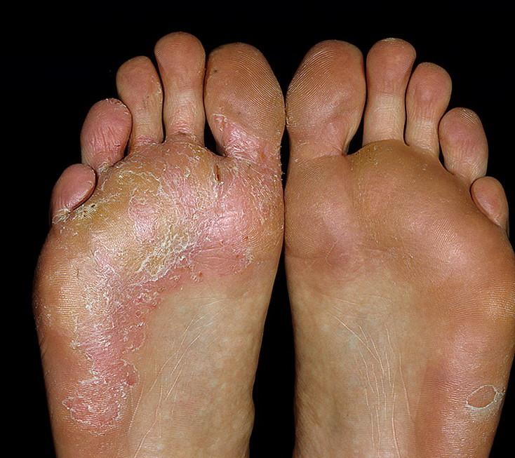 грибок стопы ног