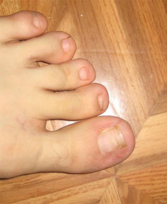 Вылечить грибок ногтей в вологде